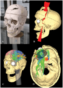 Phineas Gage Brain Injury
